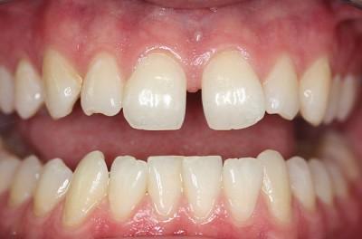 Диастема - щель между зубами, которая постепенно увеличивается