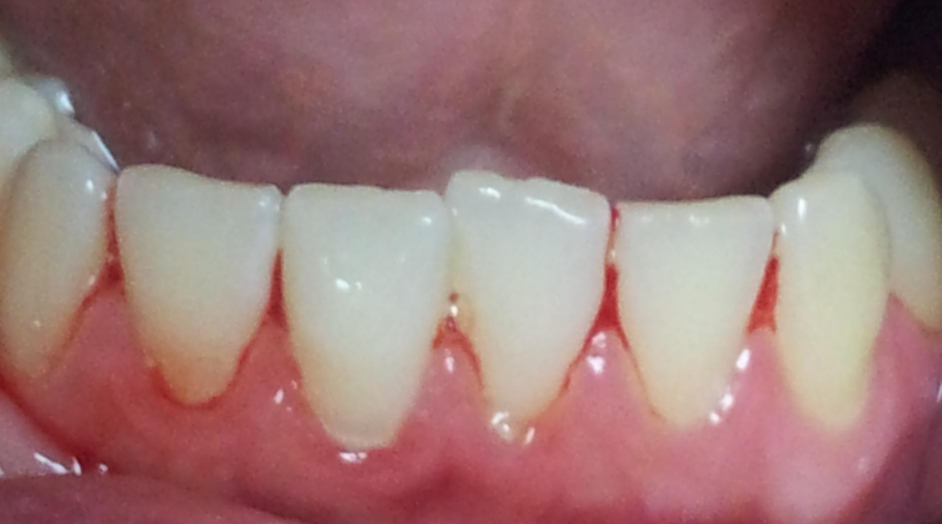 Воспаление десны под коронкой, лечение 81