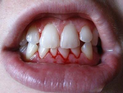 Острый гингивит характеризуется покраснением и кровоточивостью десен